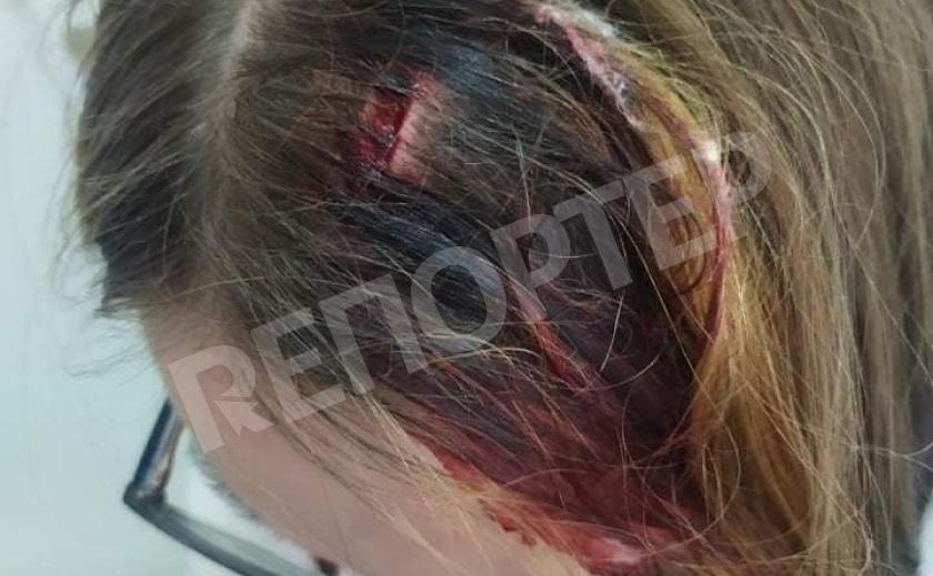 В днепровской школе ребенка избили, а родителей уволили