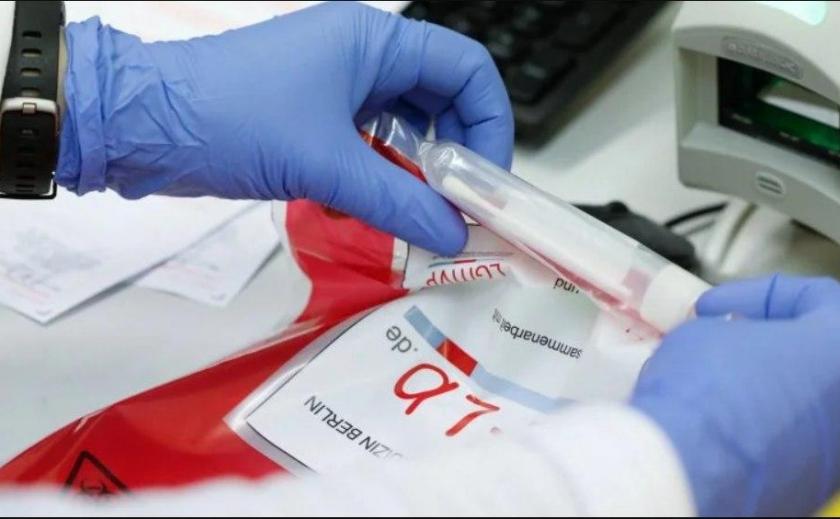 Днепропетровщина отказывается от импортных экспресс-тестов на COVID-19