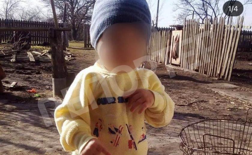 Жизнь «на волоске»: малыша, ставшего жертвой криворожского безумца, перевезли в Днепр